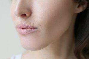 Rimpels verwijderen kan zorgen voor meer zelfvertrouwen